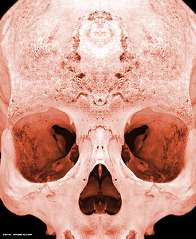 Image of a skull of someone with Syphilis